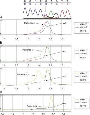 La secuenciación del gen GATA1 del paciente 4 (A) muestra una sustitución C>T (flecha) en la posición 161 dando lugar a un codón de parada. La cromatografía (B) muestra un patrón alternativo a GATA1 salvaje (WT: wild type). La cromatografía en el paciente 3 (C) muestra cambios sutiles sugestivos de la presencia de una pequeña clona GATA1 mutante.