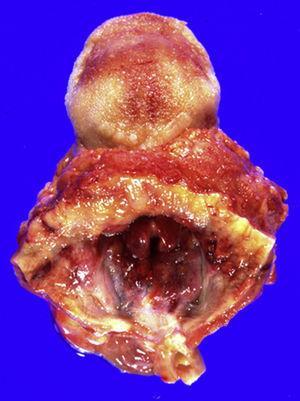 Epiglotis de color rojo cereza (vista craneal).