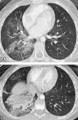 Tomografía computarizada torácica. Condensación LID.