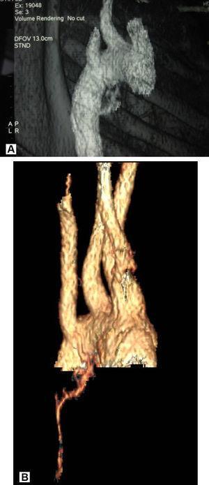 Reconstrucción de la tomografía computarizada: arteria bronquial derecha hipertrofiada y aberrante con origen en aorta adyacente a subclavia derecha aberrante. Visión posterior.