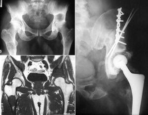 Paciente de 44 años, previamente asintomático. El dolor en la cadera izquierda llevó al diagnóstico de encondromatosis (observamos además lesiones en la cadera contralateral y en un hombro) con malignización de la localización pélvica. El tratamiento de ésta fue la resección en bloque y la reconstrucción con aloinjerto y prótesis. Nueve años después, el paciente está libre de enfermedad.