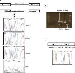 Caracterización molecular de la mutación en el gen CYBB. A) Representación esquemática del gen y secuencias de ADN de la mutación (IVS6+4A>G) encontrada en el paciente, feto, madre portadora, padre y control sano. B) Amplificación por RT-PCR entre el exón 5 y el exón 7 en el paciente (amplificado más acortado debido a la deleción del exón 6), madre portadora (con 2 bandas), padre y control sano. C) Secuencia de ADNc del paciente mostrando la deleción del exón 6.