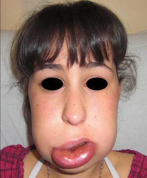 Se observa intenso edema de labio inferior y tercio inferior de la cara, que se resolvió en 2 hs tras infusión intravenosa de C1-inhibidor.
