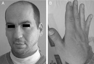 Padre de la paciente. A) Aspecto facial. B) Primer dedo grande y ancho.