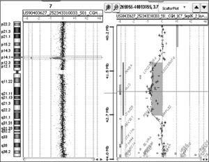 Array-CGH mostrando la deleción en 7p14.1 junto con un detalle de la zona delecionada y su contenido en genes.