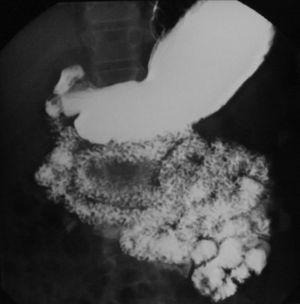 Tránsito intestinal baritado con múltiples defectos de repleción nodulares.