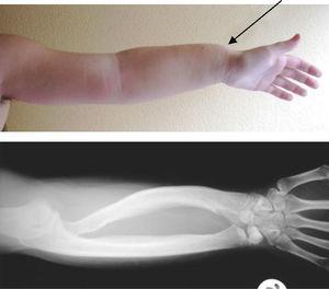 Antebrazo y muñeca y su correlación radiológica en el caso 2.