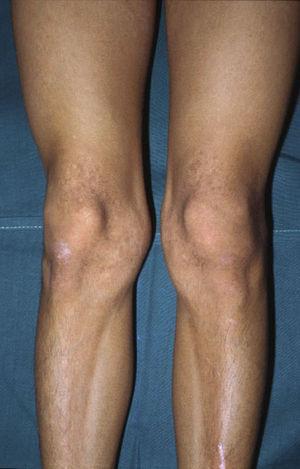 Hipertrofia muscular en extremidades inferiores del caso 2.