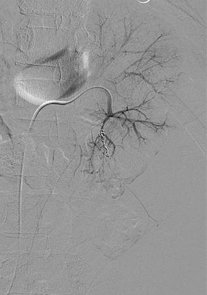 La angiografía tras embolización muestra el cese de sangrado.