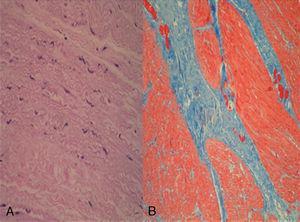A) Hematoxilina-eosina; cambios degenerativos en la capa muscular lisa (miocitólisis y picnosis). B) Tricrómico de Masson; gruesas bandas de tejido conectivo fibroso entre las fibras musculares lisas.