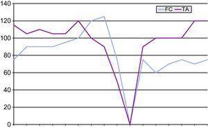 Evolución temporal de la frecuencia cardiaca y presión arterial en el tilt test.