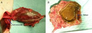 A) Imagen intraoperatoria de la vesícula torsionada sobre su eje y aspecto gangrenoso. B) Imagen de la duplicación vesicular con el tabique de separación de las dos cavidades.