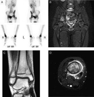 A) Gammagrafía con 99Tc: aumento de captación en acetábulo derecho y en la cortical medial de la tibia derecha en su parte distal. B) RM lumbosacra y caderas: afectación de pilar posterior del acetábulo derecho con extensión a pala iliaca derecha de predominio medular. Afectación del cuerpo de S1 sin lesión perióstica ni afectación del disco. C) y D) RM tobillo derecho: afectación de la metáfisis distal de la tibia derecha con extensión epifisaria con lesión lítica y edema perilesional con afectación perióstica en capas de cebolla.