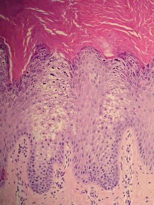 En la imagen histológica se observa hiperqueratosis con acantosis, mostrando células epiteliales con citoplasmas disgregados y áreas claras, junto con gránulos de queratohialina (hematoxilina-eosina x40).