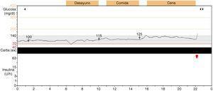 Monitorización continua de glucosa con sistema Guardian Realtime®. Carbs (ex): carbohidratos.