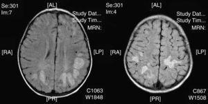 Caso 16. Imágenes RM, secuencia FLAIR: zonas de hiperintensidad en la sustancia blanca profunda subcortical en regiones occipitales de predominio izquierdo. En algunas lesiones la afectación se extiende a sustancia gris cortical (flechas).
