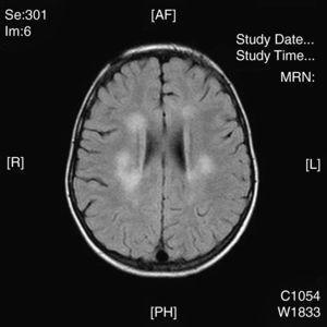 Imagen RM, FLAIR: hiperintensidad en sustancia blanca a distintos niveles de predominio periventricular (caso 14).