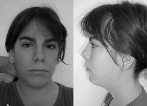 Imágenes de frente y perfil de la paciente.