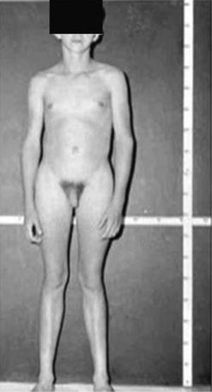 Varón de 15 años y 10 meses de edad con síndrome de Klinefelter, cariotipo 47,XXY, test pequeños y de consistencia firme, con ginecomastia y extremidades alargadas. Talla: 185cm.