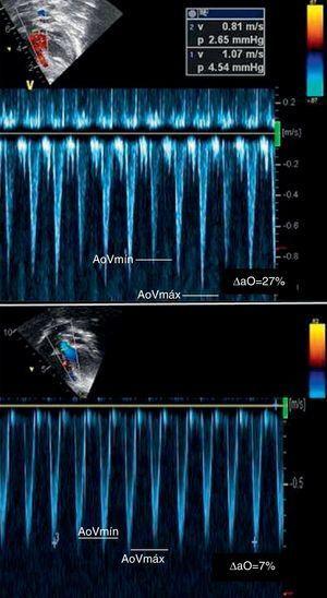 Variación del flujo aórtico antes y después de la expansión. (Corte apical de 5 cámaras) Arriba: Amplia variación antes del infusión de líquidos diagnóstico de hipovolemia y fase precarga dependiente. Abajo: reducción marca de la variación respiratoria. Pie: Δao, variación porcentual de la velocidad pico doppler del flujo aórtico.