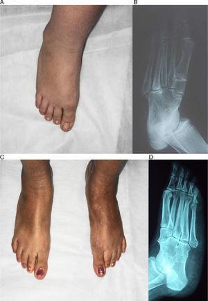 A, B) Foto y radiografía de frente del pie derecho de la niña del caso 1. C, D) Foto y radiografía de frente de ambos pies del caso 2. Se observan pies varos supinados y fusión completa de los huesos del tarso.