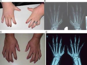 A, B) Foto y radiografía de frente de ambas manos de la niña del caso 1. C, D) Foto y radiografía de frente de ambas manos del caso 2. Se observa sinfalangismo proximal de ambas manos, fusión de los huesos del carpo, primer metacarpiano corto bilateral y fusión de falanges proximales y medias del segundo al quinto dedo bilateral.