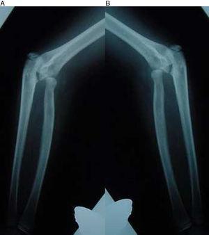 A, B) Radiografía de frente de ambos codos de la niña del caso 1. Se observa una subluxación radial proximal bilateral.