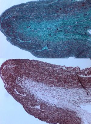 Tinción con tricrómico de Masson (imagen superior) y tinción específica de fibras elásticas (inferior) a la altura de la estenosis pulmonar. Se evidencia fibrosis colágena (superior) y disminución de fibras elásticas en la pared de la arteria pulmonar.