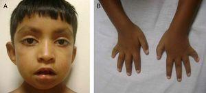 A) Se observan las cejas arqueadas y con el tercio externo disperso. Puente nasal deprimido. Fisuras palpebrales largas, con eversión del párpado inferior. B) Se observan la braquidactilia y la clinodactilia del quinto dedo de ambas manos.
