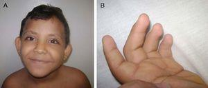 A) Se observan las cejas arqueadas y con el tercio externo disperso. Puente nasal deprimido. Fisuras palpebrales largas, con eversión del párpado inferior, orejas en copa. B). Se observa la persistencia de la almohadilla en los dedos de la mano.