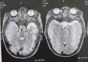 RM cerebral: atrofia lóbulo temporal derecho.