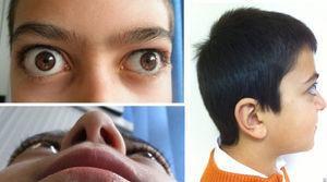 Exoftalmos bilateral asimétrico, más marcado en el ojo derecho.