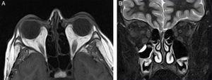 RM orbitaria. A) Corte axial: aumento de la grasa intraorbitaria bilateral, de predominio extraconal, mayor en el lado derecho. B) Corte coronal: engrosamiento de la musculatura extraocular bilateral y simétrica, fundamentalmente de los músculos rectos inferiores y mediales.