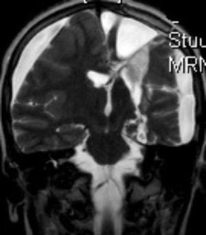 Imagen de RM (T2) corte coronal. RM de control tras hemisferectomía izquierda.