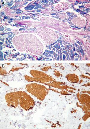 A) Presencia de pequeños haces fusiformes dispersos por el estroma dérmico, que se tiñen de marrón-rojizo con el tricrómico de Masson. B) Positividad para la actina de músculo liso, siendo negativa la proteína S-100 (descarta el origen neural de los fascículos).