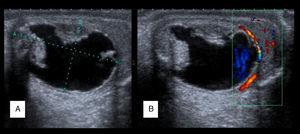 Ecografía de un teratoma quístico testicular (A) y su estudio Doppler (B). Imagen de tipo quístico de 24×14mm, con áreas en su entorno de tipo sólido (de tipo mamelonar) y una lengüeta en su porción inferior correspondiente con parénquima testicular sano (A).