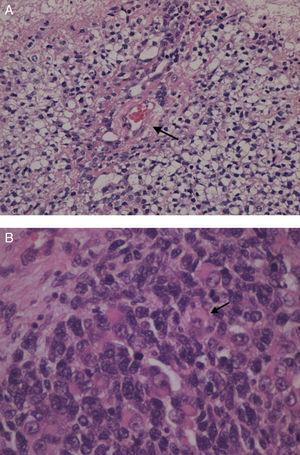 A) Imagen microscópica de tumor testicular de saco vitelino: cuerpo de Schiller Duval (flecha). B) Imagen microscópica del estudio anatomopatológico de la tumoración de la figura 4: rabdomiosarcoma embrionario. Proliferacióncelular atípica de células pequeñas y redondas junto a células redondeadas con núcleos hipercromáticos irregulares y citoplasma amplio: rabdomioblastos (flecha).