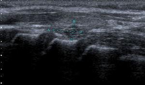 Ecografía de tiroides: a nivel posteroinferior del lóbulo tiroideo izquierdo se aprecia una lesión ovoidea, exofítica, parcialmente bien delimitada, micronodular, hipoecoica, con un tamaño aproximado de 16×4mm.