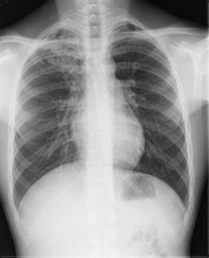 Radiografía de tórax que muestra infiltrado en el lóbulo superior derecho.