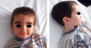 Fotografías de cara y perfil del paciente.