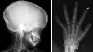 Radiografía lateral de cráneo y de la mano, observándose la acroosteólisis.