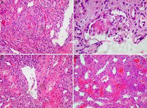 A) Glomérulo mostrando marcada proliferación extracapilar epitelial, con necrosis fibrinoide central. Hematoxilina-eosina, 10×. B) Detalle de penacho glomerular con mínima proliferación extracapilar y necrosis segmentaria. Hematoxilina-eosina, 40×. C) Presencia de vasculitis en vaso de tipo venular. Hematoxilina-eosina, 10×. D) Áreas de extravasación hemática intersticial y hemorragia intratubular.