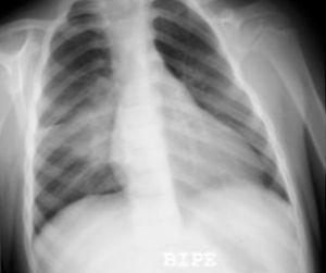 Condensación del segmento lateral del lóbulo medio y adenopatías hiliares derechas en paciente con enfermedad tuberculosa.