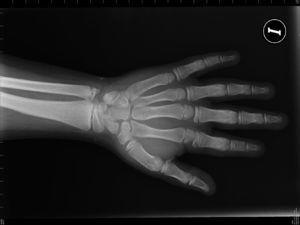 Radiografía de la mano izquierda del caso 1, que muestra braquimetacarpia, osteoporosis generalizada y edad ósea acelerada.