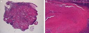 A) Tumoración sólida bien delimitada, formada por una zona periférica con células basaloides y una parte central con células eosinófilas. B) Células con citoplasma eosinófilo y pérdida del núcleo (células fantasma) junto con células transicionales.