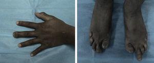 Manos y pies del caso índice. Se observa la afección a las porciones distales de los dedos, con uñas distróficas e hipoplásicas.