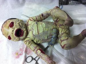 Imagen de recién nacido afecto de ictiosis arlequín, se aprecia el tronco y extremidades cubiertos por placas de hiperqueratosis con fisuración más marcada en pliegues. En región facial destaca la raíz nasal plana secundaria a la hipoplasia del hueso nasal, el ectropión palpebral y los labios evertidos.