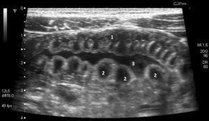 Corte transversal con haz de ultrasonidos en la fosa iliaca izquierda, donde se muestra el engrosamiento de la pared del intestino delgado (1), que consiste en colecciones líquidas anecoicas entre la mucosa y la submucosa (2), con incremento de líquido intraluminal (3).