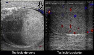 Ecografía doppler color del testículo izquierdo y del derecho (cortes longitudinales). Muestra una ausencia de flujo venoso y arterial en el testículo derecho, con presencia de vascularización aumentada en el tejido paratesticular (flecha negra). El flujo venoso y arterial está conservado en el testículo izquierdo.