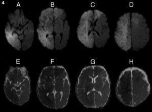 RM secuencia de difusión: lesión corticosubcortical frontoparietal derecha y frontal izquierda compatible con lesión isquémica. La hipointensidad de la lesión en ADC confirmó el estadio agudo de la lesión.